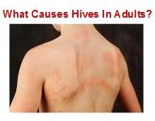 what causes the hives picture 7