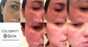 best skin vitamins picture 6