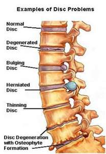 cream for degenerative spine disease picture 15