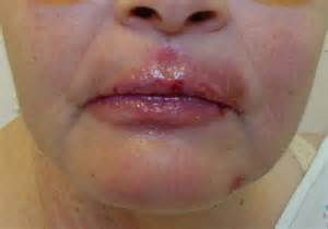 pictures of herpes on mouth picture 2
