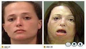 y pill before and after [ics picture 3