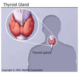 scholarship for having thyroid removed picture 17