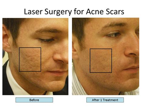 acne treatment laser picture 5
