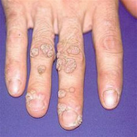 cures for flat warts picture 6