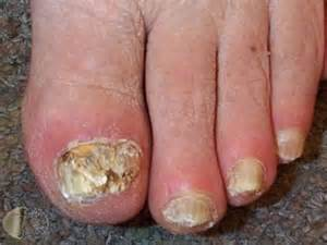 pinpoint toe fungus pa picture 3