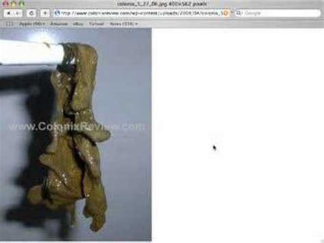 colon detox dr. natura picture 1