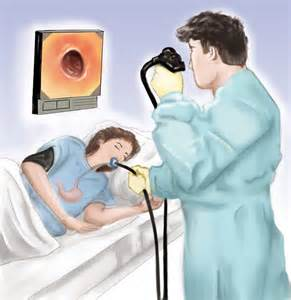gastrointestinal endoscopy picture 1
