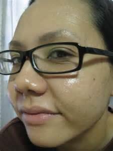 acne and vinegar picture 9