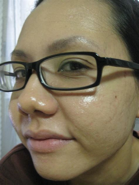 acne after colonic picture 6