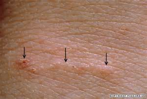 bed bugs burrow under skin picture 11