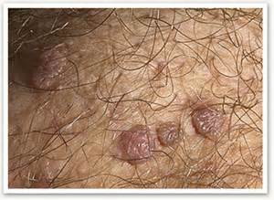 external genital warts picture 3