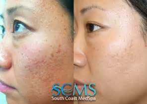 remove acne scars with laser picture 10
