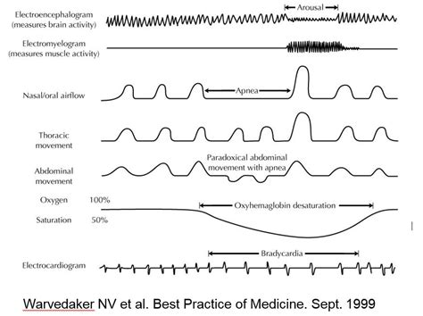 protocol for scoring hypopneas in polysomnography sleep study picture 2