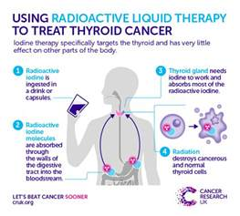 cancer research thyroid picture 21