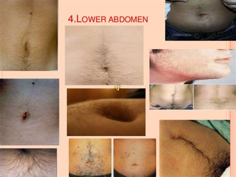 androgenic acne picture 9