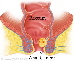 colon cancer causes picture 11