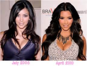has kiara mia done anything since breast implants picture 2