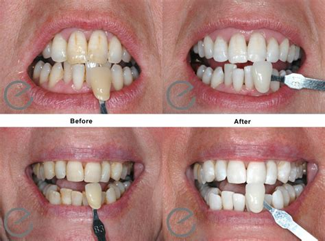 zoom 2 teeth whitening picture 6