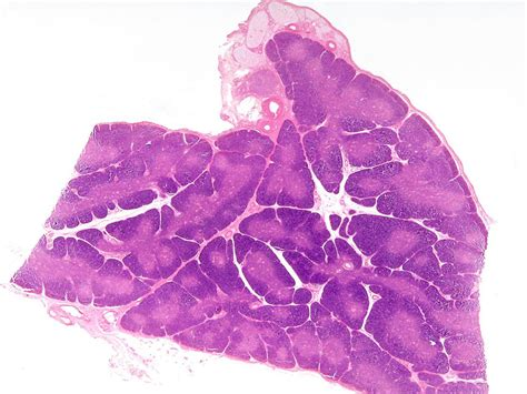 thymus picture 3