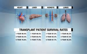 history of liver transplants picture 2