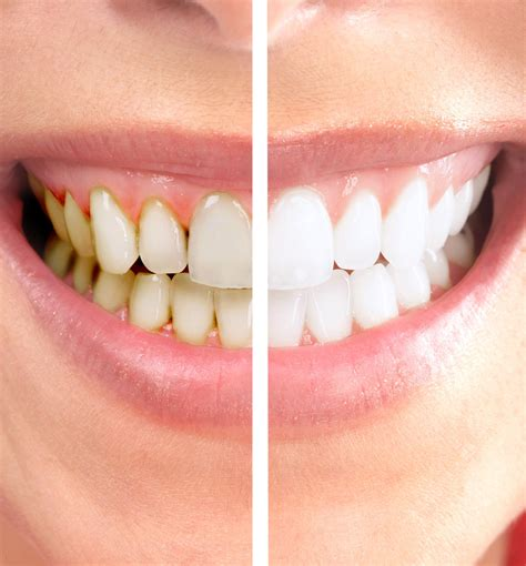 zoom teeth whitening picture 7