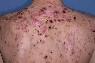 how many people die from skin cancer picture 15