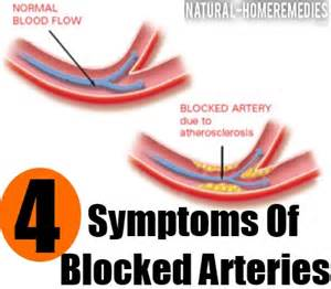 clogged arteries picture 6