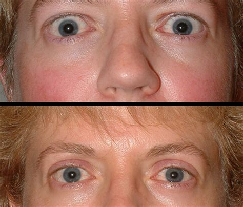 thyroid burning eyes picture 1