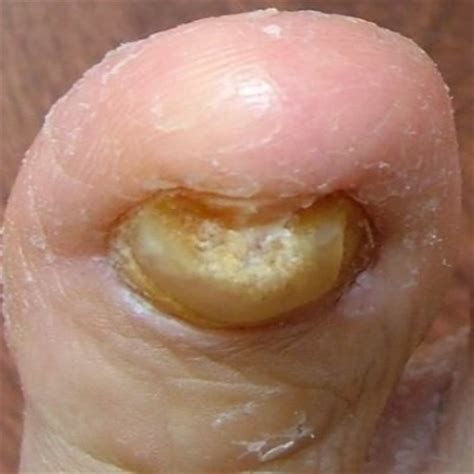 apple cider vinegar for nail fungus picture 6
