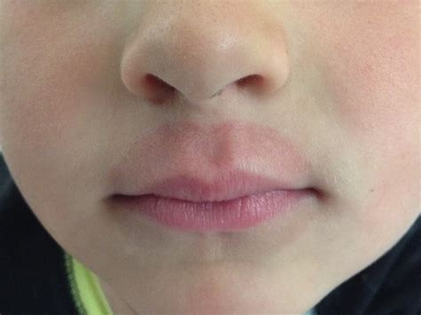 Toddlers chewing on their bottom lip picture 16