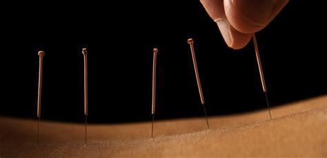 Acupuncturesantamonica picture 1