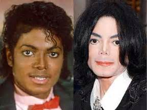 black skin vs white picture 14
