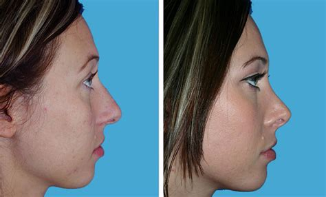 breast augmentation recovery period picture 9