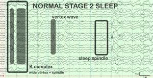 sleep spindles picture 11