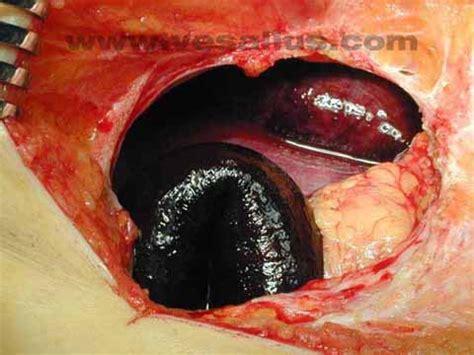 bowel infarction picture 10