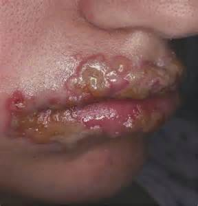 herpes lip picture 3