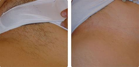 hair removal monrovia picture 1