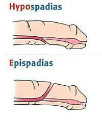 hypospadias bladder picture 2
