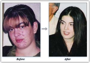 vitacure acne works review picture 7