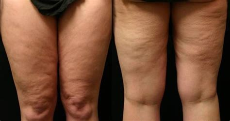 what causes cellulite picture 2