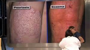 what causes cellulite picture 13