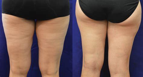 cellulite reduction picture 6
