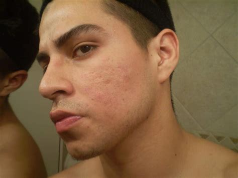 bad reviews on klaron for acne picture 1