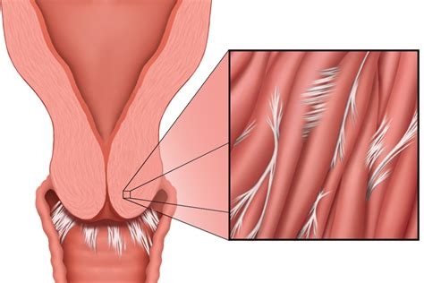can the penis penetrate the cervix picture 12