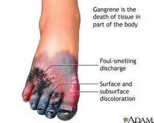 Erection blood flow picture 3