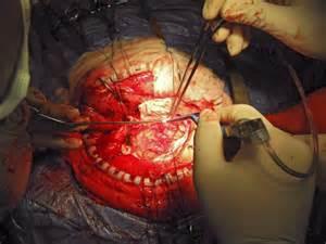 colon illnesses picture 13