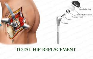 image of hip replacement joint picture 1
