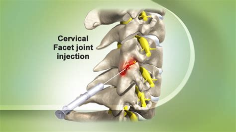 cervical and lumbar facet joint blocks picture 5