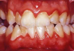 treatment for healthy gums and teeth picture 5