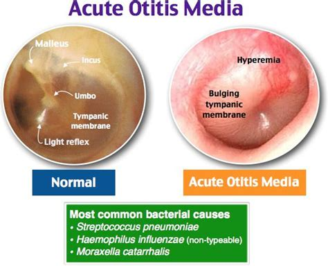 Acute bacterial ois media picture 19